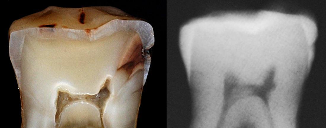 Diagnosis Dental Caries Dentine Caries Enhanced Dental