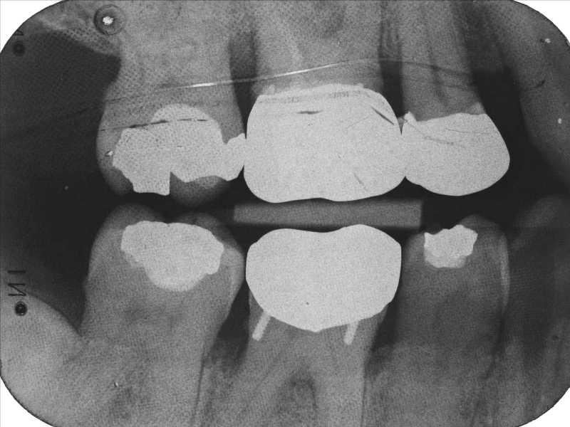 Dental Radiography Film Faults Quiz 1 Enhanced Dental